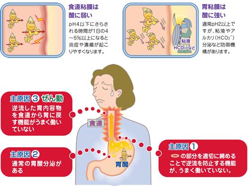 逆流 性 食道 炎 治し 方